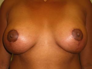 Manhattan Breast Augmentation after 4